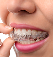 Clear Aligners - Almost Invisible Braces San Juan Capistrano, CA